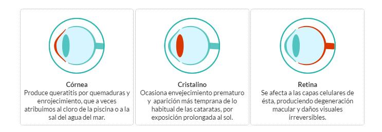 cornea cristalino retina